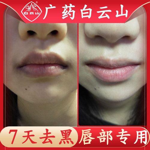 嘴角黑色素去除嘴唇唇膜暗沉唇周黑周围唇色淡化唇纹